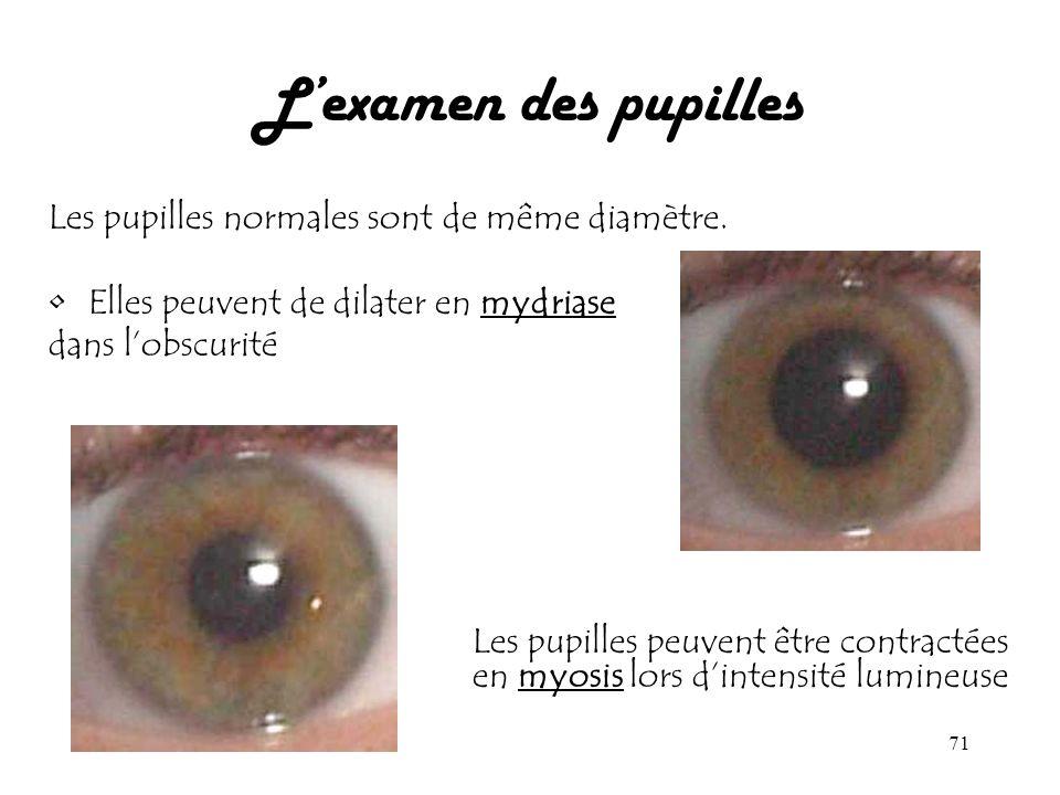 71 Lexamen des pupilles Les pupilles normales sont de même diamètre. Elles peuvent de dilater en mydriase dans lobscurité Les pupilles peuvent être co