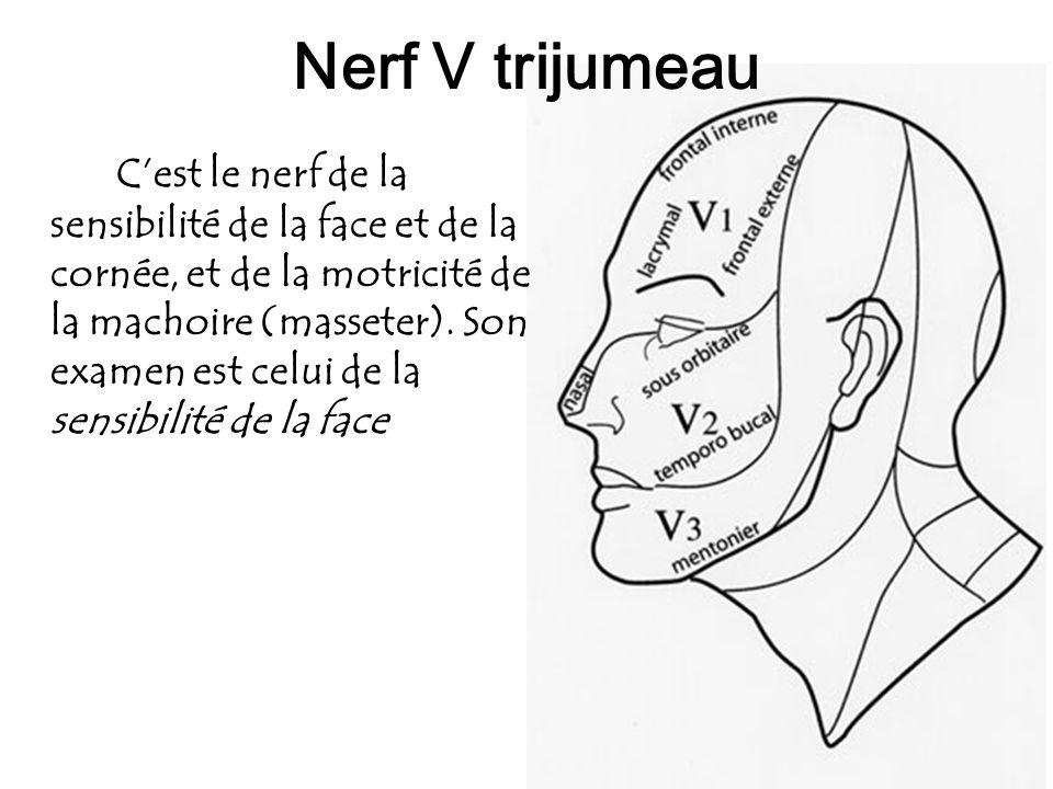 74 Nerf V trijumeau Cest le nerf de la sensibilité de la face et de la cornée, et de la motricité de la machoire (masseter). Son examen est celui de l