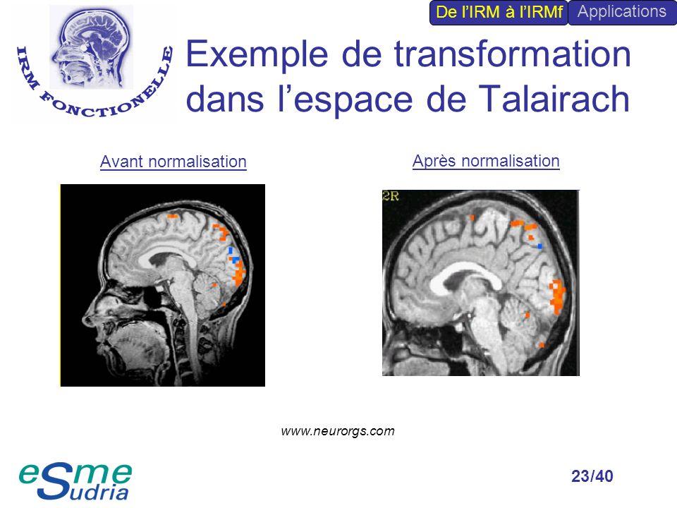 /4023 Exemple de transformation dans lespace de Talairach Avant normalisation Après normalisation De lIRM à lIRMf Applications www.neurorgs.com
