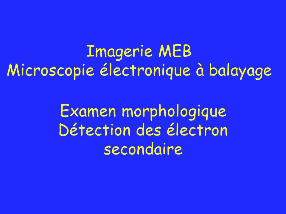 Examen morphologique Détection des électron secondaire Imagerie MEB Microscopie électronique à balayage