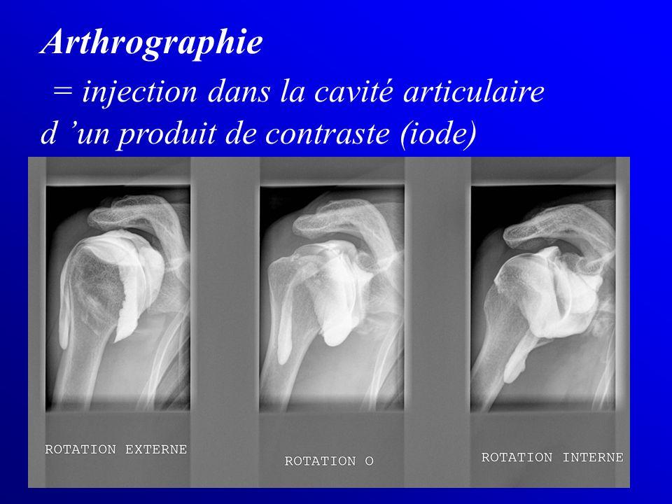 Arthrographie = injection dans la cavité articulaire d un produit de contraste (iode)