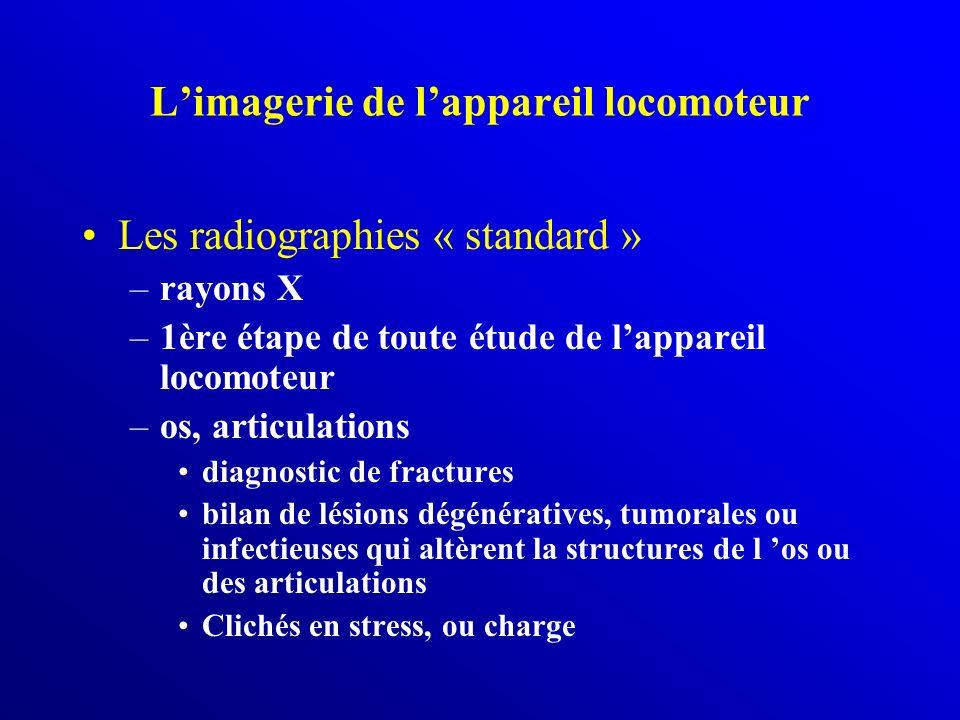 Limagerie de lappareil locomoteur Les radiographies « standard » –rayons X –1ère étape de toute étude de lappareil locomoteur –os, articulations diagn