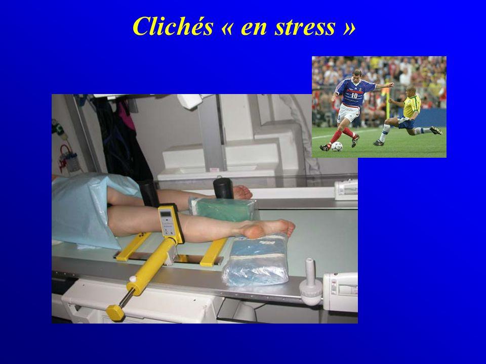 Clichés « en stress »