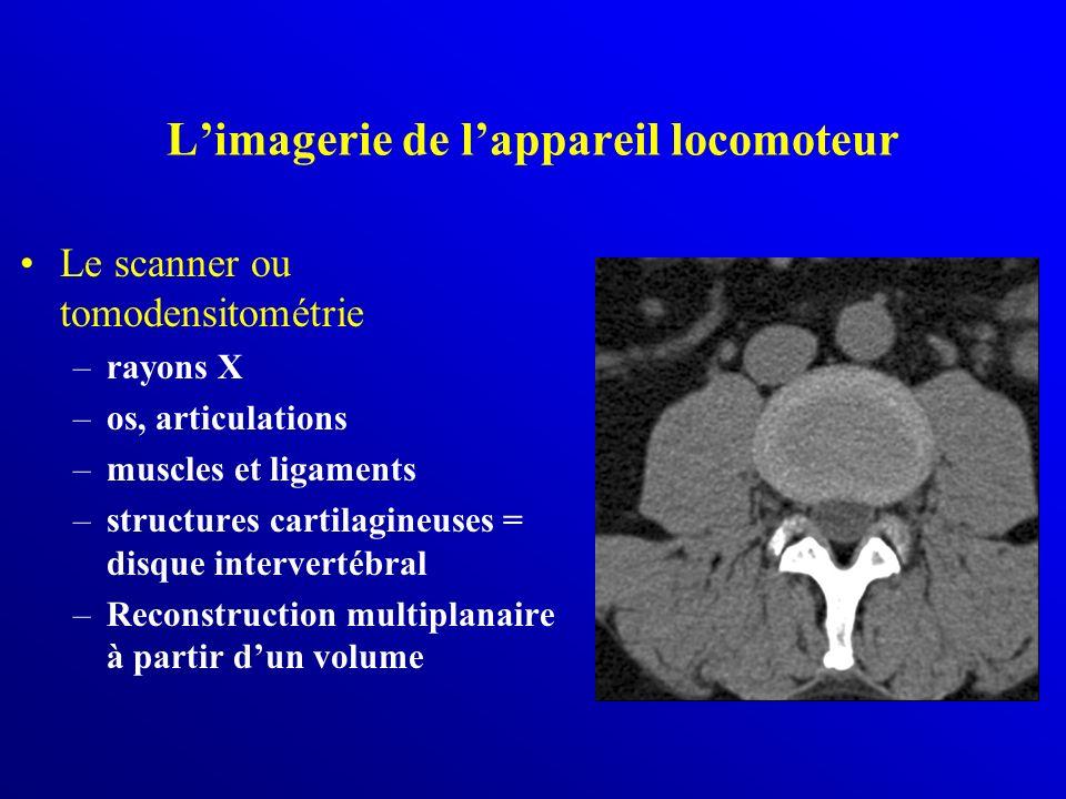 Limagerie de lappareil locomoteur Le scanner ou tomodensitométrie –rayons X –os, articulations –muscles et ligaments –structures cartilagineuses = dis