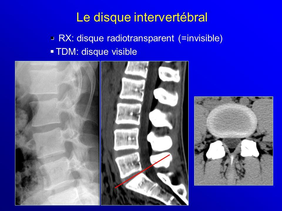 Le disque intervertébral RX: disque radiotransparent (=invisible) TDM: disque visible