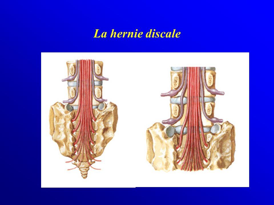 La hernie discale