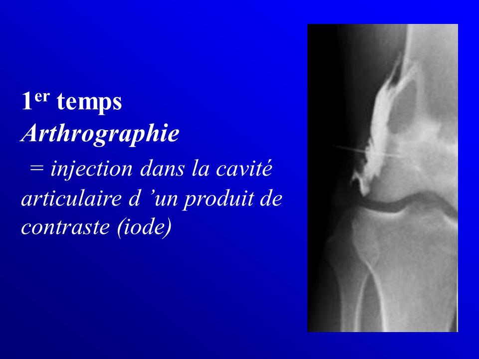 1 er temps Arthrographie = injection dans la cavité articulaire d un produit de contraste (iode)