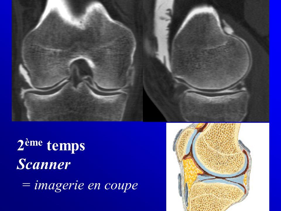 2 ème temps Scanner = imagerie en coupe