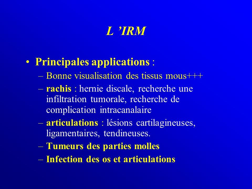 Principales applications : –Bonne visualisation des tissus mous+++ –rachis : hernie discale, recherche une infiltration tumorale, recherche de complic