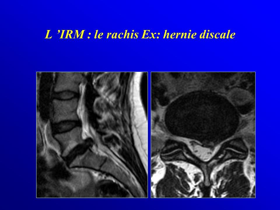 L IRM : le rachis Ex: hernie discale
