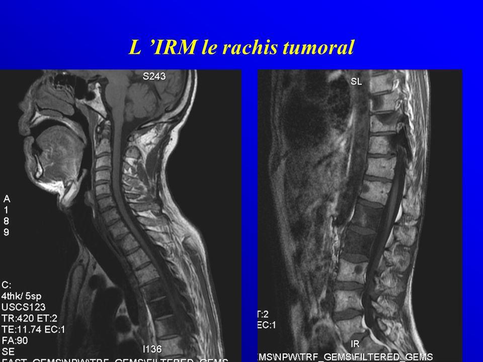 L IRM le rachis tumoral