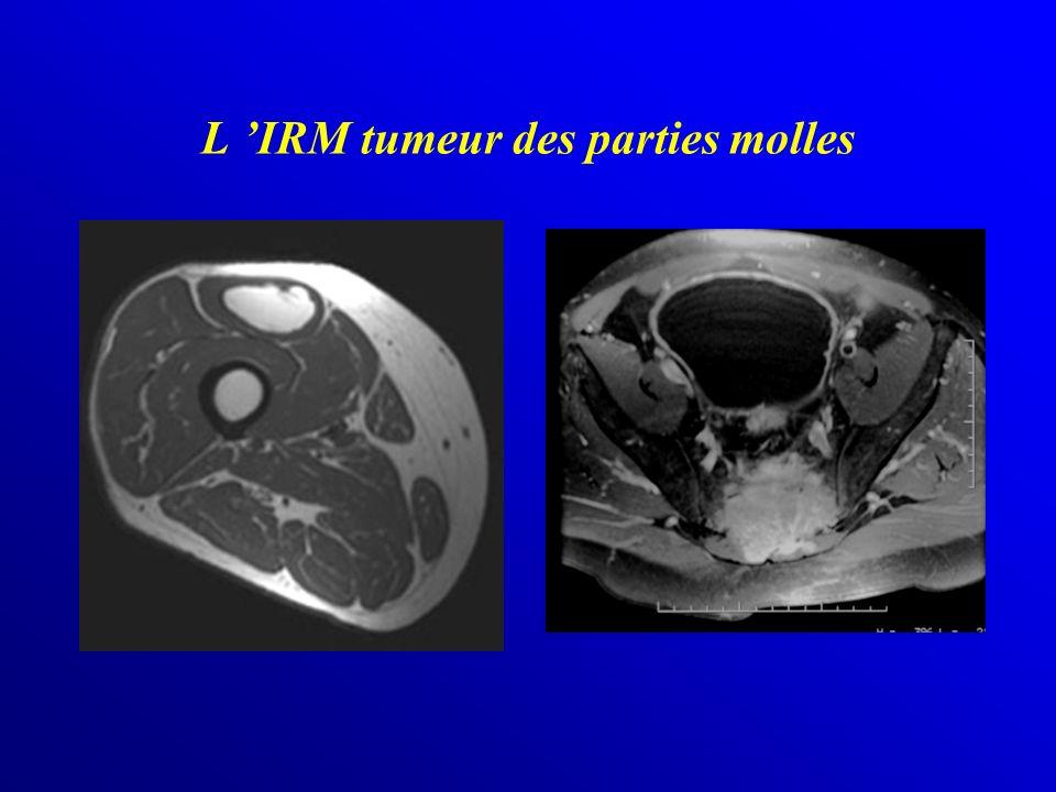 L IRM tumeur des parties molles