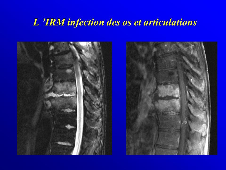 L IRM infection des os et articulations