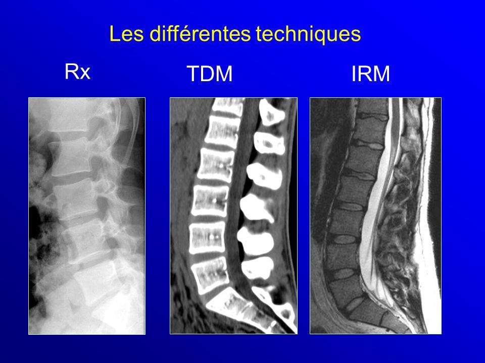 Rx TDMIRM Les différentes techniques