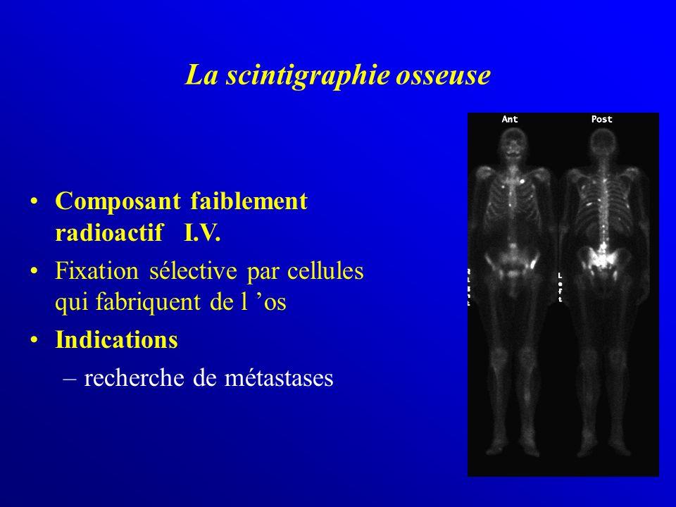 La scintigraphie osseuse Composant faiblement radioactif I.V. Fixation sélective par cellules qui fabriquent de l os Indications –recherche de métasta