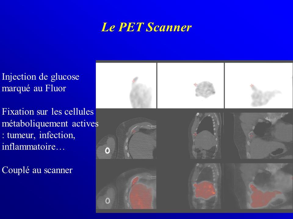 Le PET Scanner Injection de glucose marqué au Fluor Fixation sur les cellules métaboliquement actives : tumeur, infection, inflammatoire… Couplé au sc