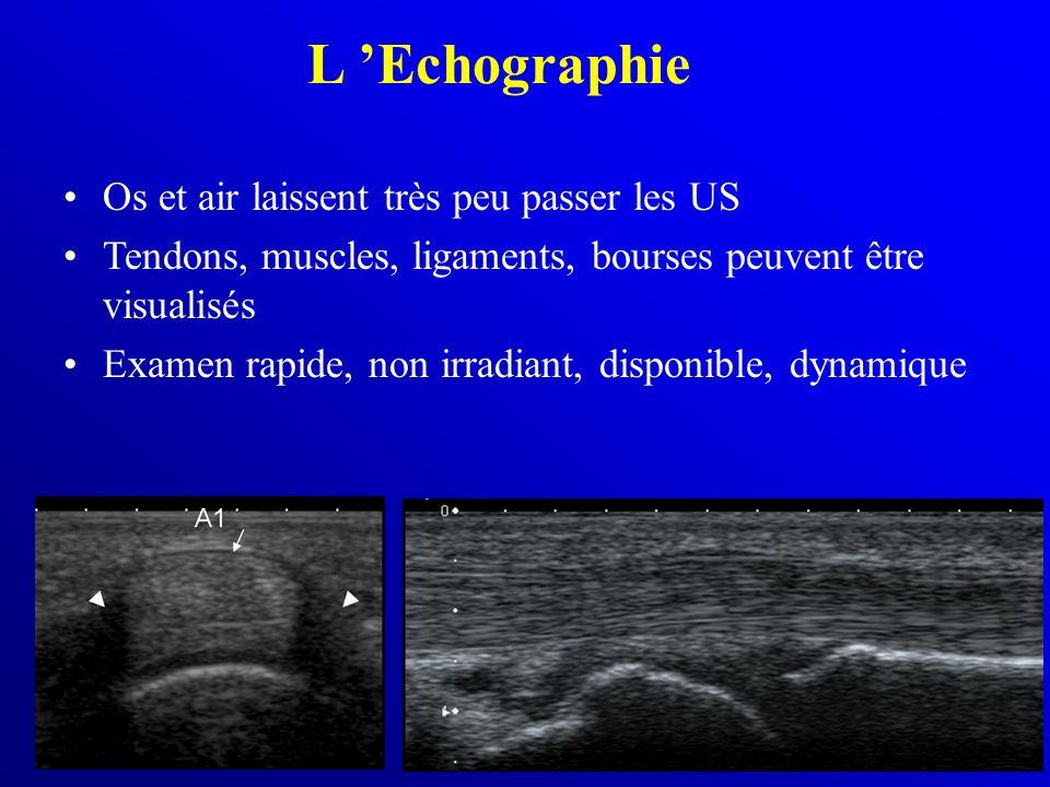 L Echographie Os et air laissent très peu passer les US Tendons, muscles, ligaments, bourses peuvent être visualisés Examen rapide, non irradiant, dis