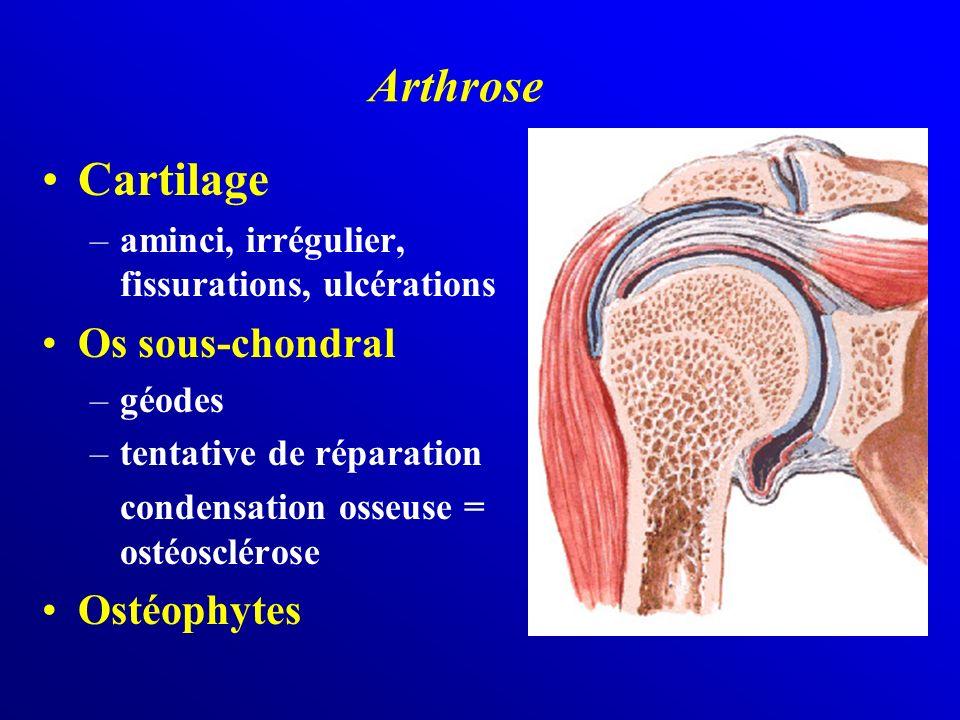 Cartilage –aminci, irrégulier, fissurations, ulcérations Os sous-chondral –géodes –tentative de réparation condensation osseuse = ostéosclérose Ostéop