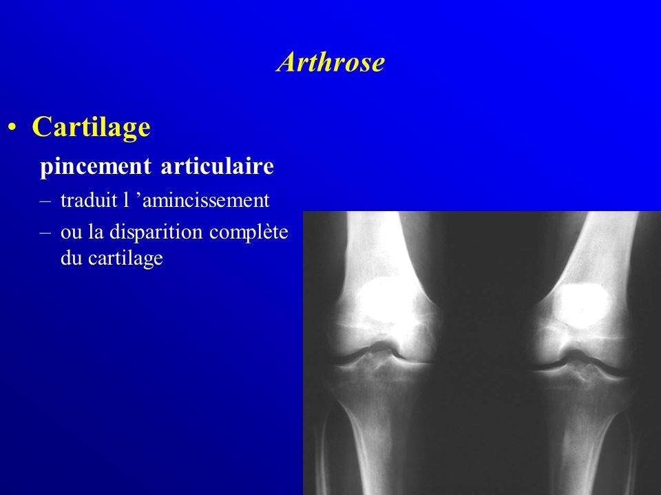 Cartilage pincement articulaire –traduit l amincissement –ou la disparition complète du cartilage Arthrose