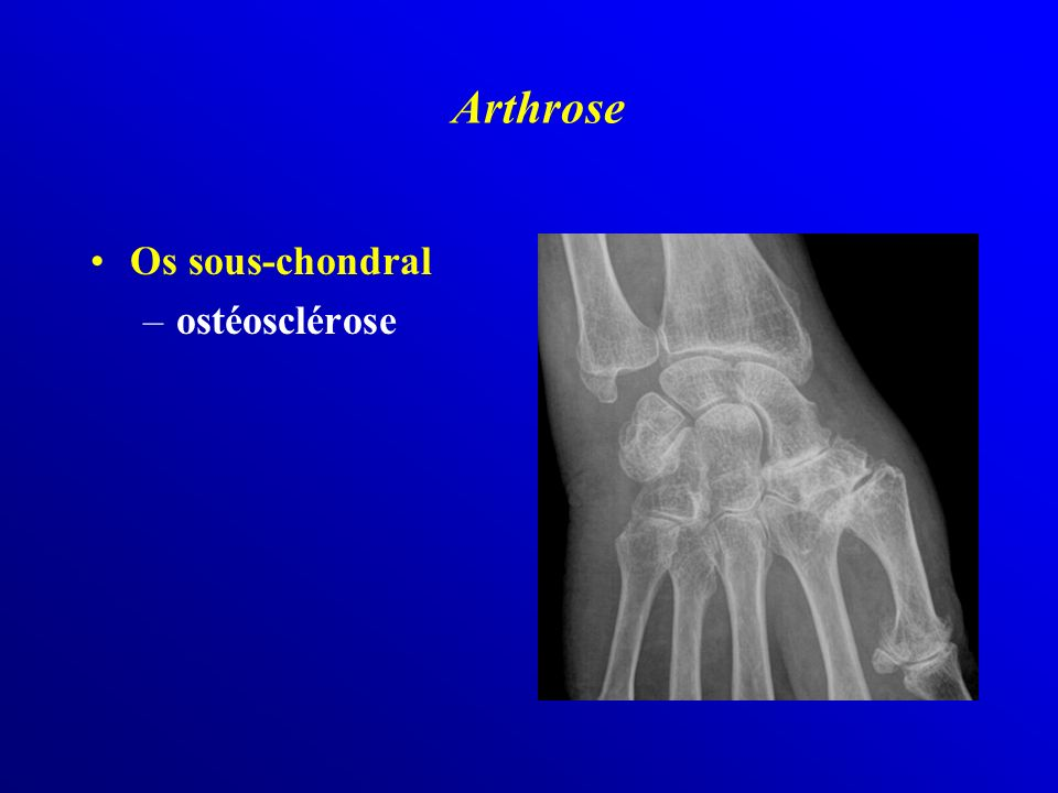 Os sous-chondral –ostéosclérose Arthrose