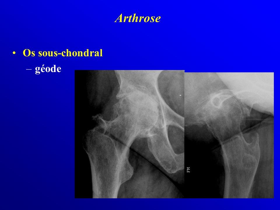 Os sous-chondral –géode Arthrose