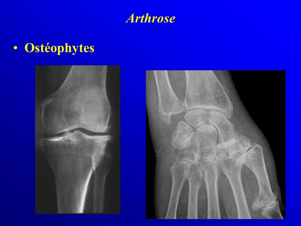 Ostéophytes Arthrose