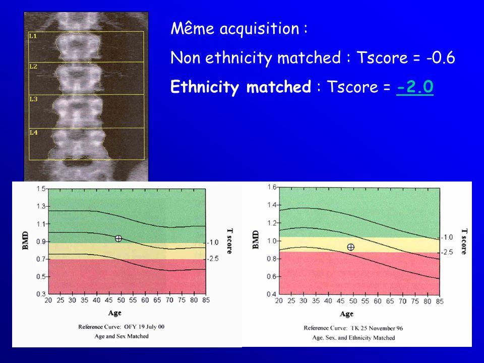 Même acquisition : Non ethnicity matched : Tscore = -0.6 Ethnicity matched : Tscore = -2.0