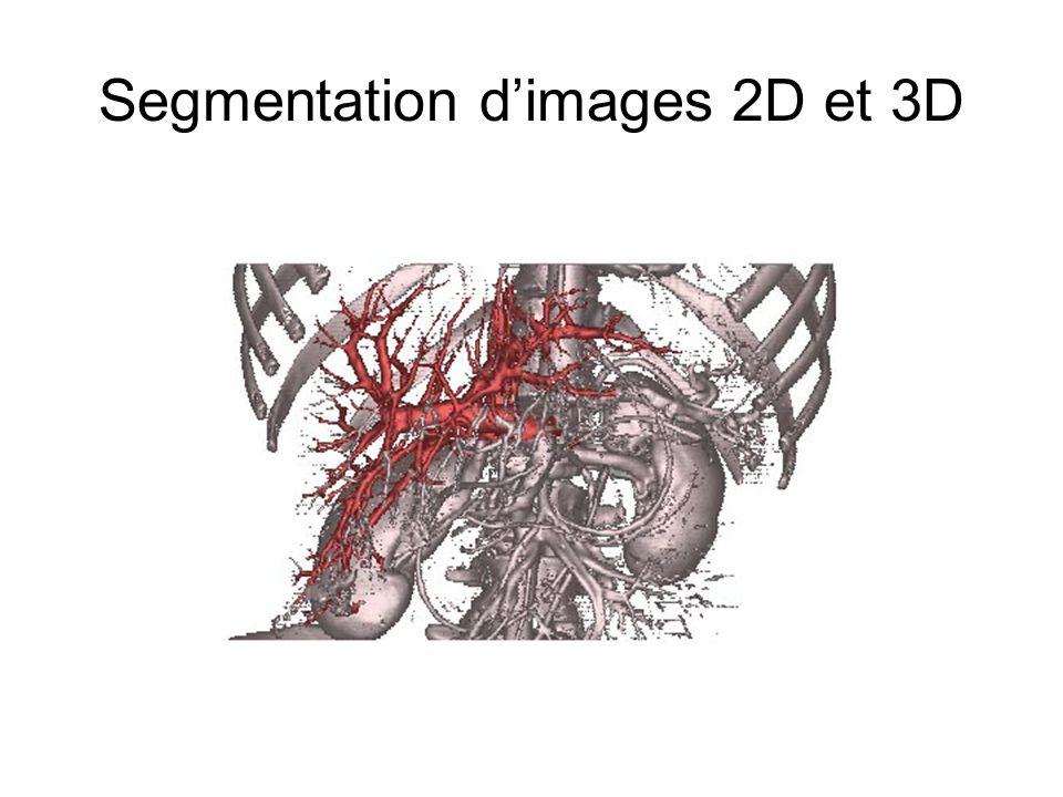 Segmentation dimages 2D et 3D