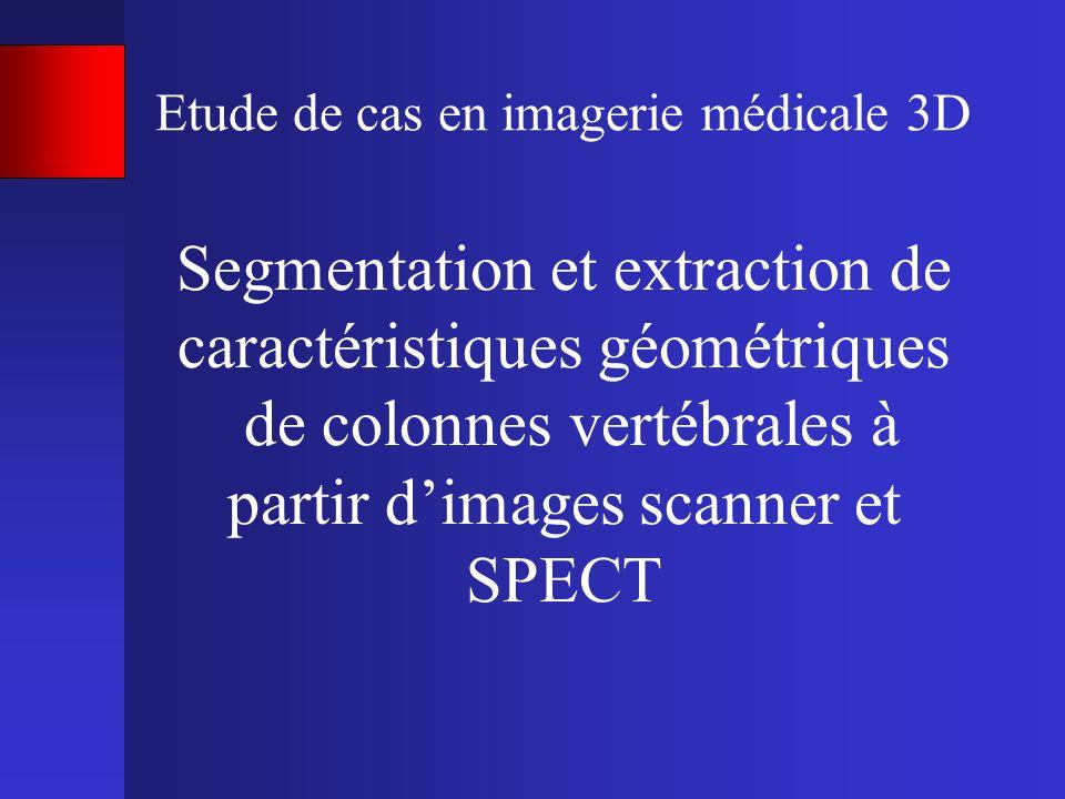 Etude de cas en imagerie médicale 3D Segmentation et extraction de caractéristiques géométriques de colonnes vertébrales à partir dimages scanner et S