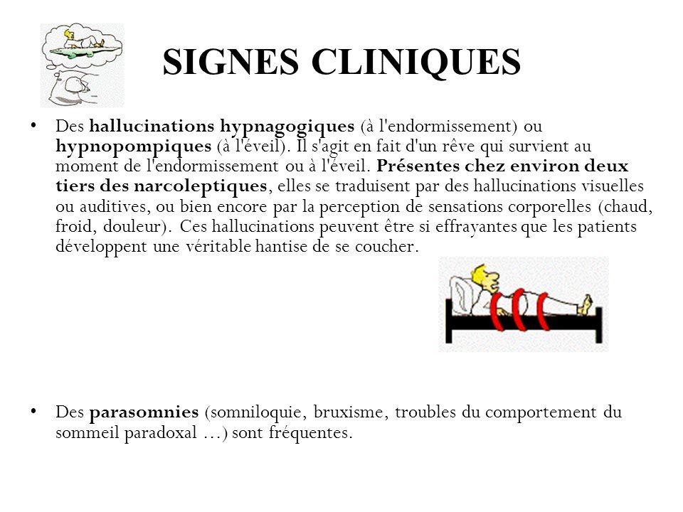 SIGNES CLINIQUES Des hallucinations hypnagogiques (à l'endormissement) ou hypnopompiques (à l'éveil). Il s'agit en fait d'un rêve qui survient au mome