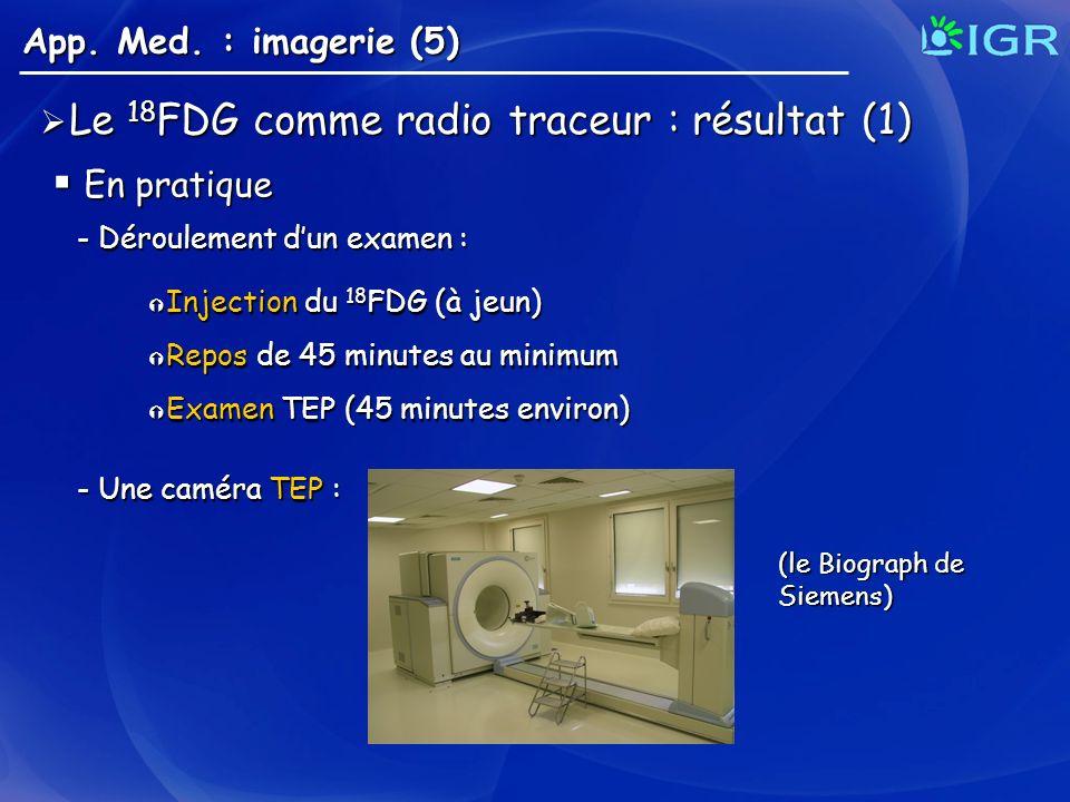 Injection du 18 FDG (à jeun) Injection du 18 FDG (à jeun) Repos de 45 minutes au minimum Repos de 45 minutes au minimum Examen TEP (45 minutes environ