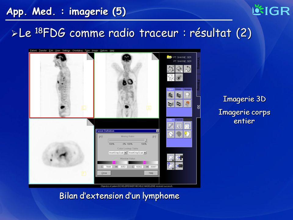 Le 18 FDG comme radio traceur : résultat (2) Le 18 FDG comme radio traceur : résultat (2) App. Med. : imagerie (5) Bilan dextension dun lymphome Image