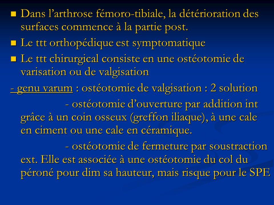 Dans larthrose fémoro-tibiale, la détérioration des surfaces commence à la partie post.