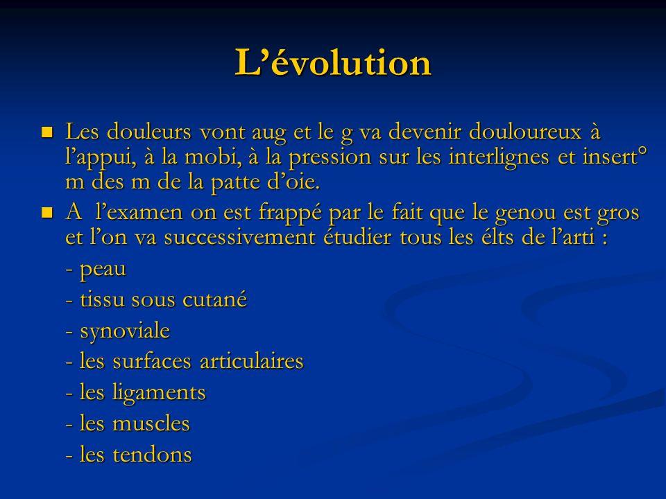 Lévolution Les douleurs vont aug et le g va devenir douloureux à lappui, à la mobi, à la pression sur les interlignes et insert° m des m de la patte doie.