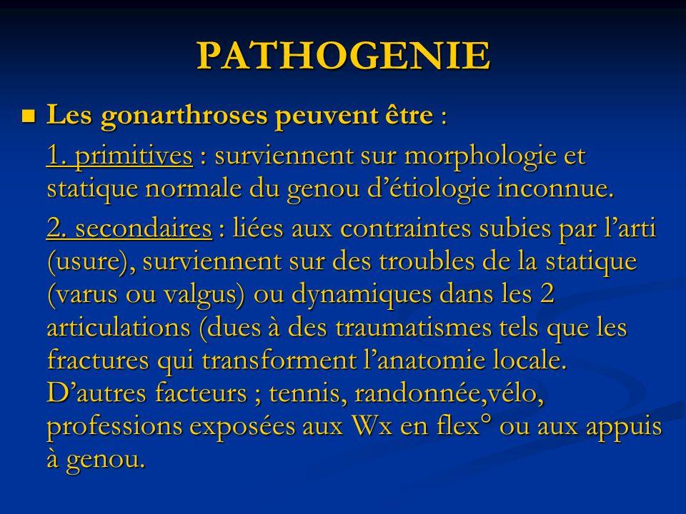 PATHOGENIE Les gonarthroses peuvent être : Les gonarthroses peuvent être : 1. primitives : surviennent sur morphologie et statique normale du genou dé