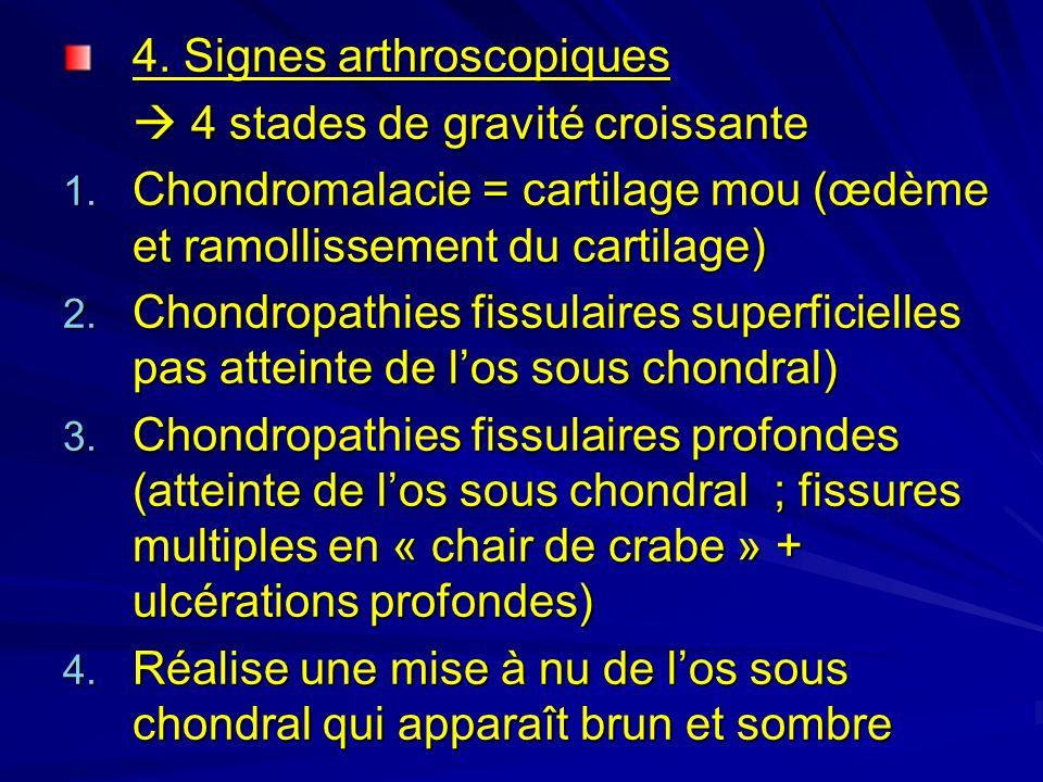 4.Signes arthroscopiques 4 stades de gravité croissante 4 stades de gravité croissante 1.