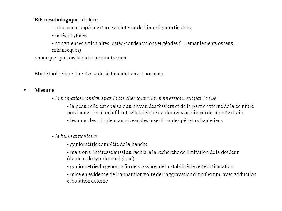 Bilan radiologique : de face - pincement supéro-externe ou interne de linterligne articulaire - ostéophytoses - congruences articulaires, ostéo-conden