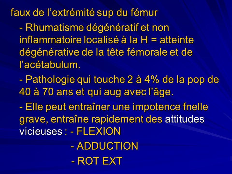 faux de lextrémité sup du fémur - Rhumatisme dégénératif et non inflammatoire localisé à la H = atteinte dégénérative de la tête fémorale et de lacéta