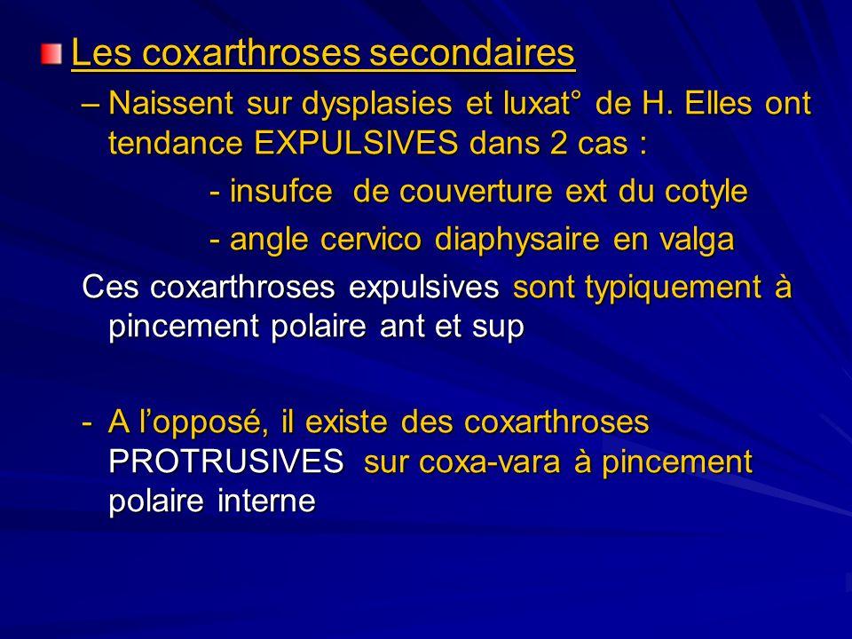 Les coxarthroses secondaires –Naissent sur dysplasies et luxat° de H. Elles ont tendance EXPULSIVES dans 2 cas : - insufce de couverture ext du cotyle