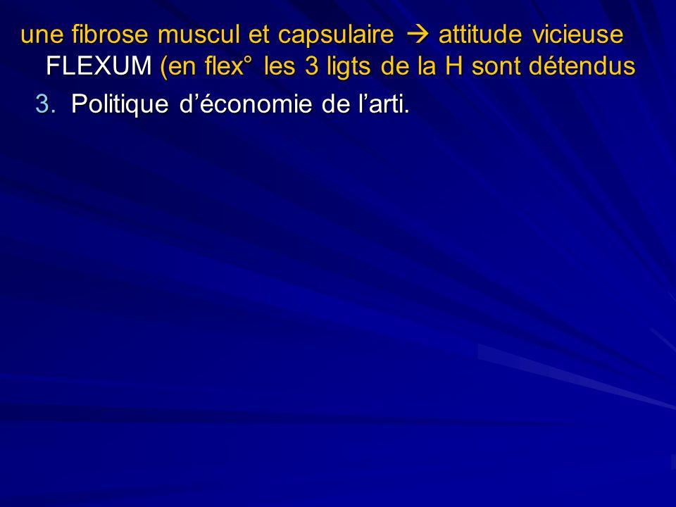une fibrose muscul et capsulaire attitude vicieuse FLEXUM (en flex° les 3 ligts de la H sont détendus 3. Politique déconomie de larti. 3. Politique dé