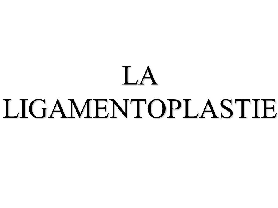 LA LIGAMENTOPLASTIE
