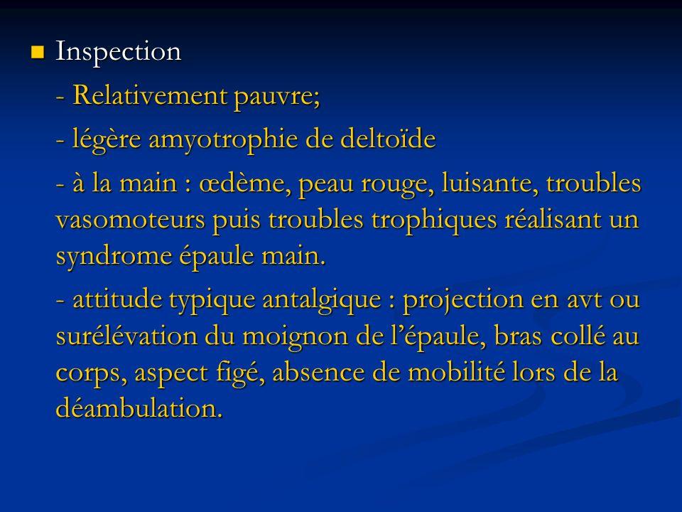 Inspection Inspection - Relativement pauvre; - légère amyotrophie de deltoïde - à la main : œdème, peau rouge, luisante, troubles vasomoteurs puis tro