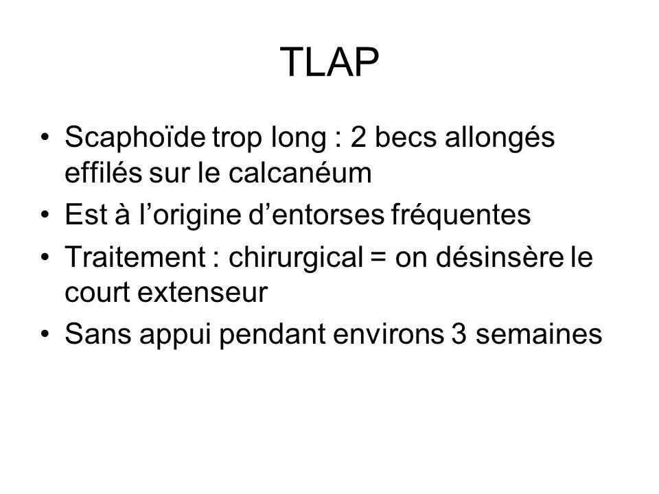 TLAP Scaphoïde trop long : 2 becs allongés effilés sur le calcanéum Est à lorigine dentorses fréquentes Traitement : chirurgical = on désinsère le cou