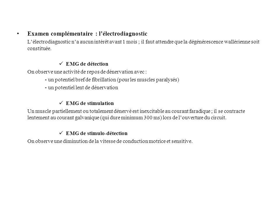 Examen complémentaire : lélectrodiagnostic Lélectrodiagnostic na aucun intérêt avant 1 mois ; il faut attendre que la dégénérescence wallérienne soit