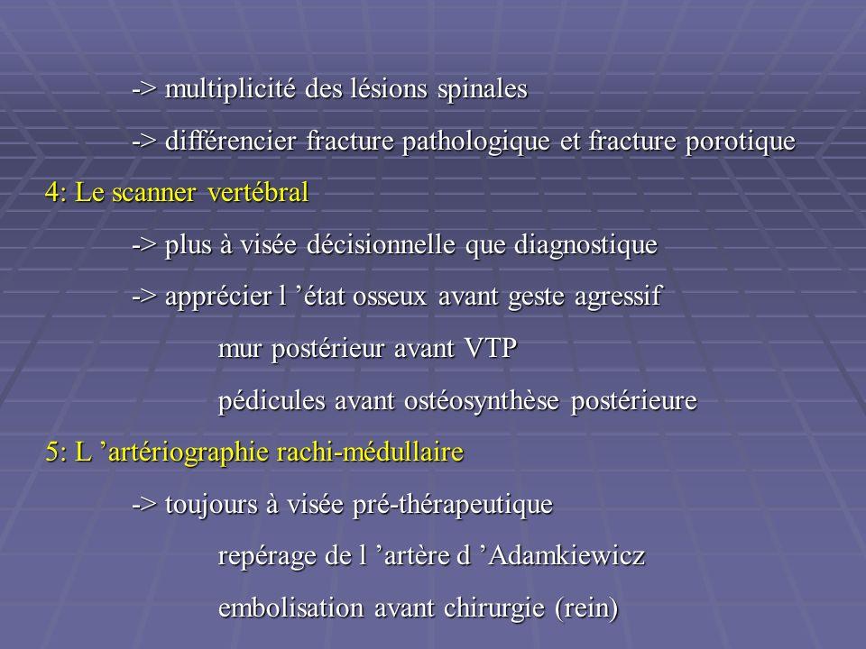 -> multiplicité des lésions spinales -> différencier fracture pathologique et fracture porotique 4: Le scanner vertébral -> plus à visée décisionnelle