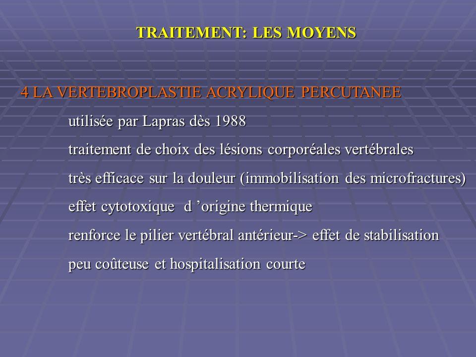 TRAITEMENT: LES MOYENS 4 LA VERTEBROPLASTIE ACRYLIQUE PERCUTANEE utilisée par Lapras dès 1988 traitement de choix des lésions corporéales vertébrales