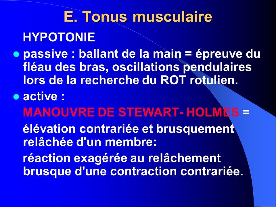 HYPERTONIE Spastique (ou Élastique), caractéristiques du syndrome pyramidal = mouvements imposés rencontrent une résistance qui s accroît avec le degré d étirement, le membre reprenant sa place dès qu il est relâché.