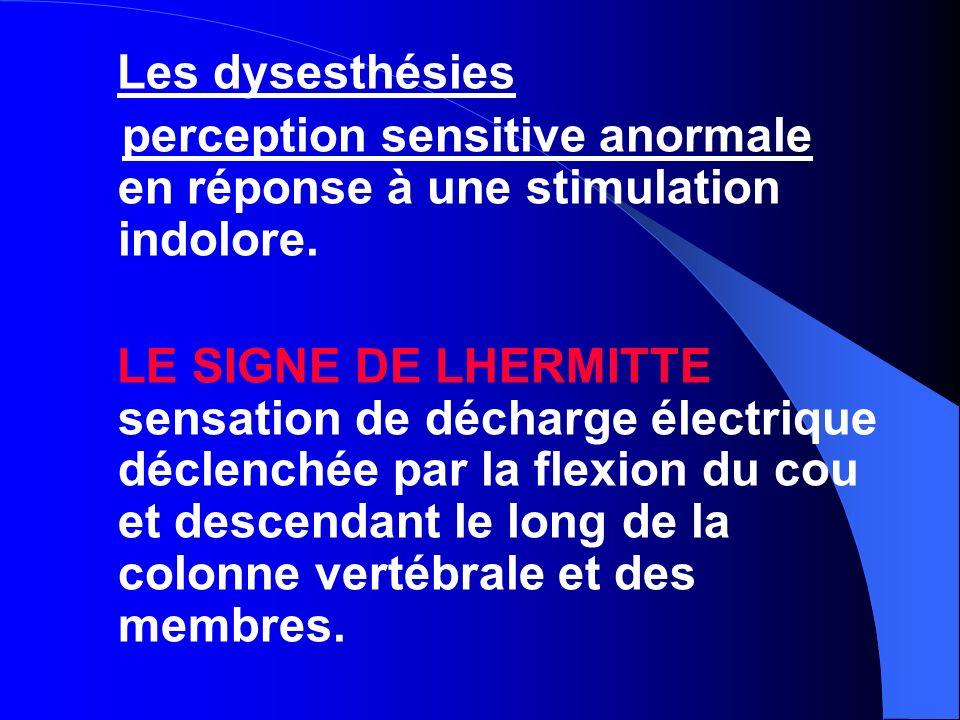 Signe d examen Il faut préciser le type de sensibilité concernée : - Tactile, douloureuse, thermique, vibratoire ou positionnelle.