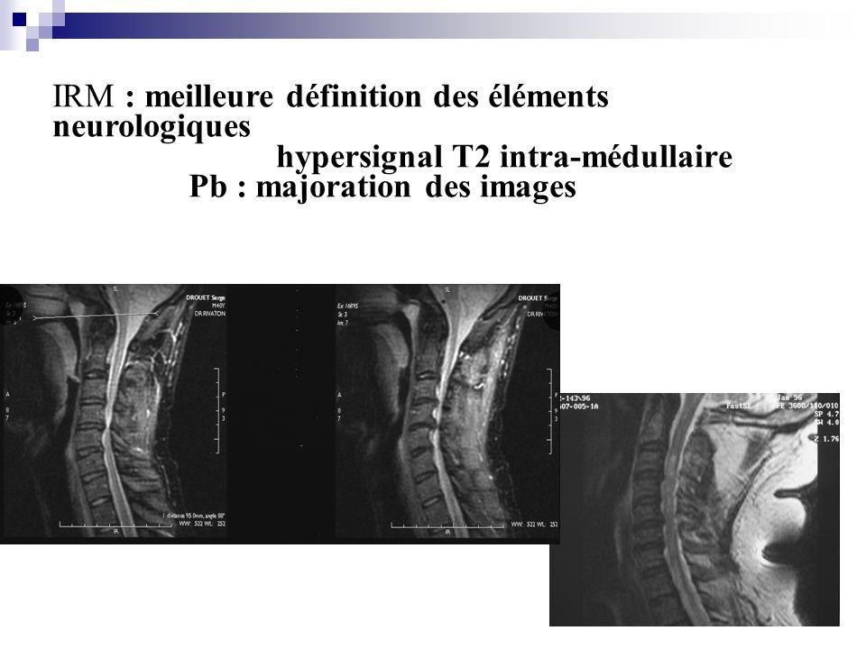 IRM : meilleure définition des éléments neurologiques hypersignal T2 intra-médullaire Pb : majoration des images