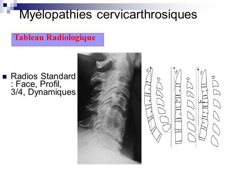 Myélopathies cervicarthrosiques Radios Standard : Face, Profil, 3/4, Dynamiques Tableau Radiologique